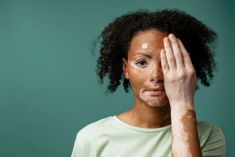 Portrait of a young woman with vitiligo condition